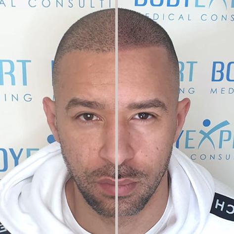 Photo-05-Micropigmentation-BodyExpert
