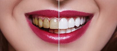 Treatment dental veneer Body Expert