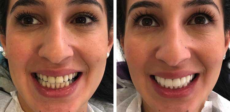 Facettes dentaires Emax en Turquie avant / après
