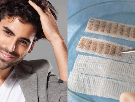 Greffe de cheveux Manuelle : l'implant capillaire haute couture