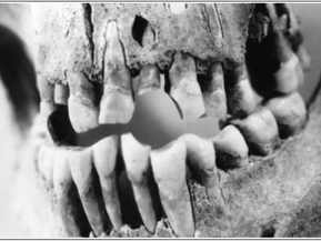 The Strange Case of Excessive Bone Loss at the Patuxent Point Site