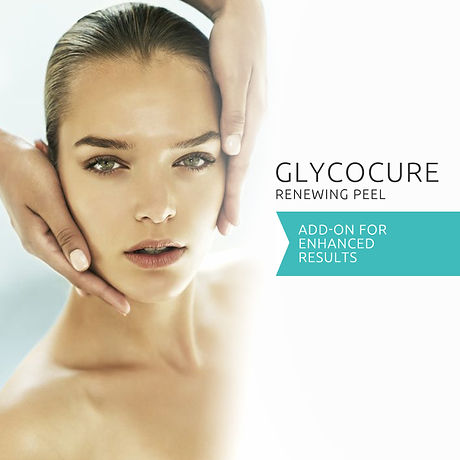Glycocure-peel-Germaine-de-Capuccini-facial-in-derby.jpg