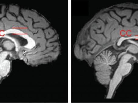 Edição epigenética reverte distúrbio cerebral em camundongos.