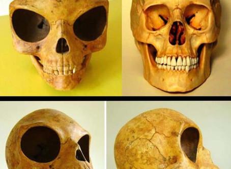 Mente Aberta: O Crânio de Sealand é de um extraterrestre?