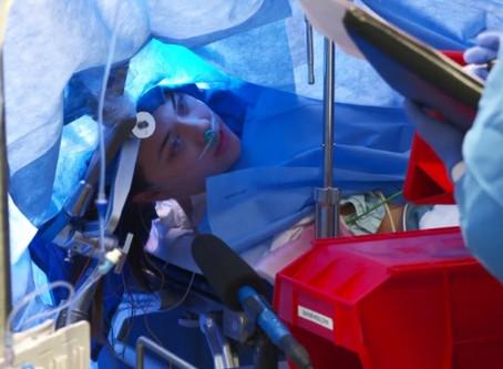 Com paciente acordada, médicos fazem transmissão ao vivo de cirurgia cerebral.