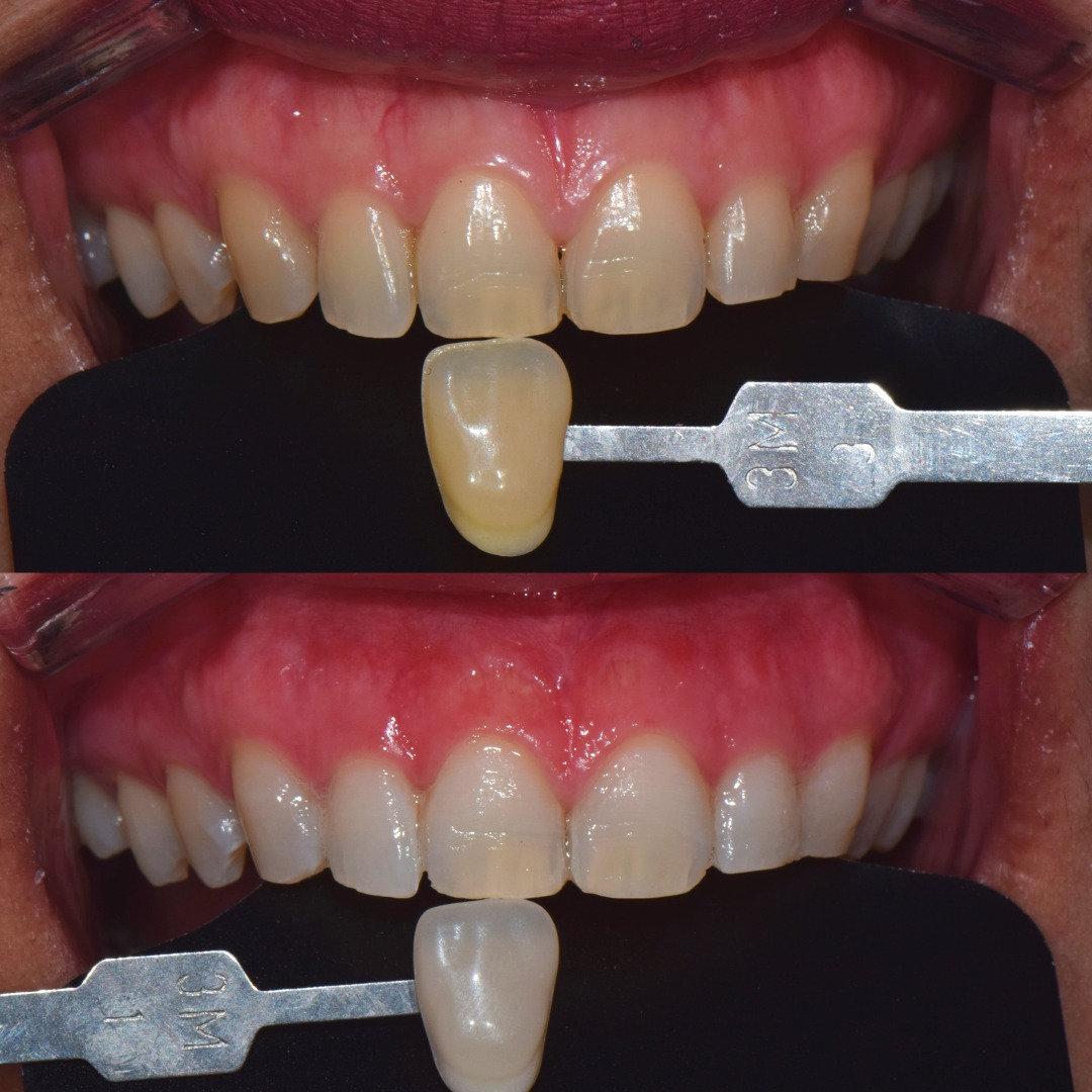 Bleaching (Teeth Whitening)