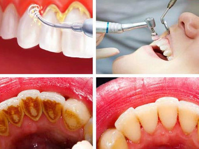 Special Scaling in Ok Dental For You!