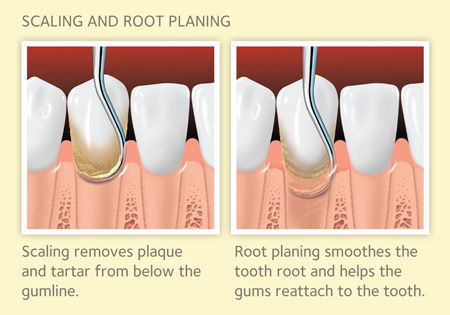Scaling and Gingival Treatment