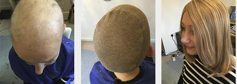 chemotherapy wig