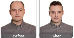 Male wig before and after