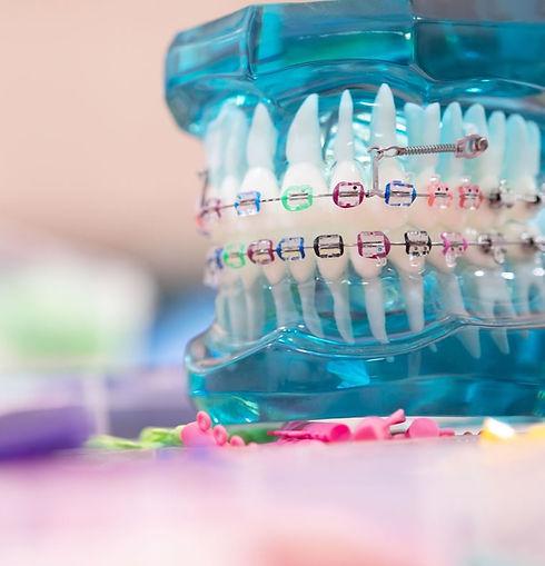 orthodontic-options_edited.jpg