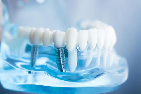 Impianto dentale.jpg