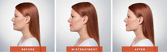 kybella-before-and-after-photo.png