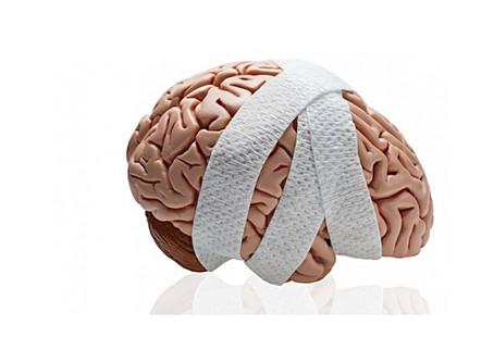 Neurofeedback for Brain Injury