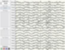 EEG data recording