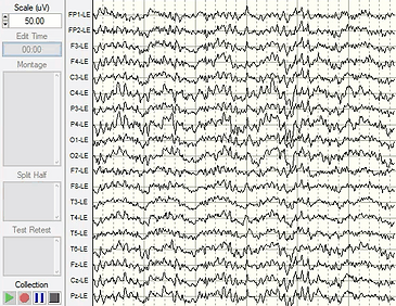 EEG data recording