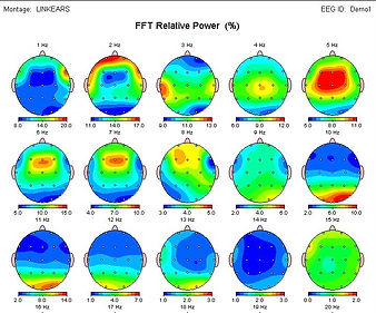 qEEG brain maps