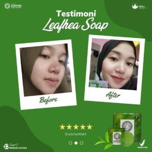 Testimoni-leafhea-09-300x300.jpg
