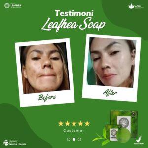Testimoni-leafhea-21-300x300.jpg