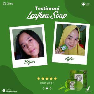 Testimoni-leafhea-28-300x300.jpg