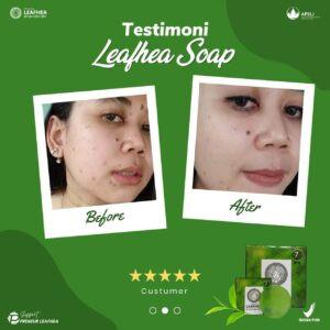 Testimoni-leafhea-23-300x300.jpg