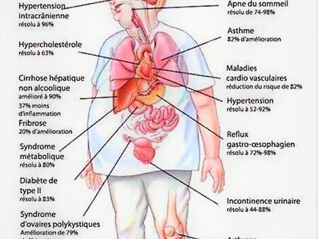 Ostéopathie et Obésité