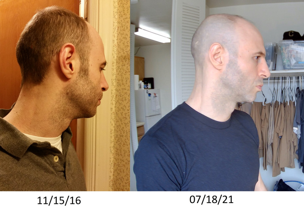 Before and After (final).jpg