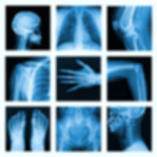 x-ray pictures
