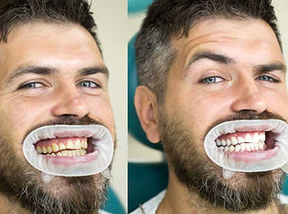 northbrook-teeth-whitening-before-after-
