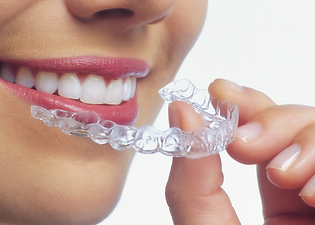 Woman-inserting-Aligner-close-up.png