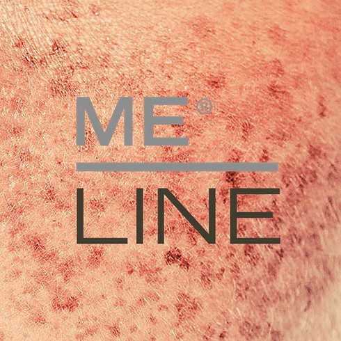MeLine Grunnkurs