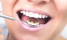 Unsichtbare, ästhetische Zahnspange, Kieferorthopäde Buchholz