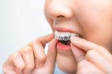 gerade Zähne in 6 Monaten, unsichtbare, Schienen, invisalign, Kieferorthopäde Buchholz