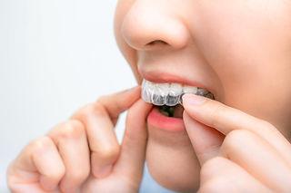 gerade Zähne in 6-8 Monaten, transparente Zahnspange, Schienentherapie, Kieferorthopäde Buchholz