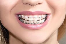 Kieferorthopäde Buchholz, gerade Zähne in 6 Monate, unsichtbar, ästhetische Zahnspange, Kieferorthopädie