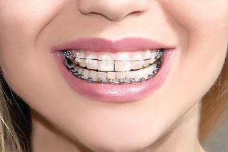 Ästhetische unsichtbare Zahnspange, Kieferorthopäde Buchholz
