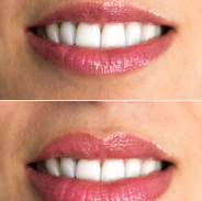 Lips redone with silicone.jpg