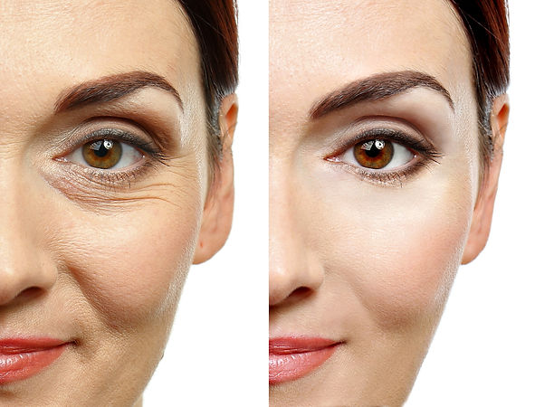 Woman face before and after cosmetic pro