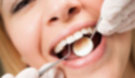 dental-oral-health-what-happens-during-a