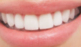 How-Much-Does-Teeth-Whitening-Cost-700x2