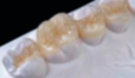1-filling-burnside-dental-care.jpg
