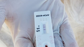 Secretaria Municipal de Saúde de Santa Bárbara orienta população sobre testes para Covid-19