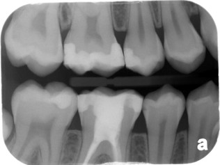 Radiation and Dental X-Rays