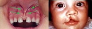 Alteraciones del lenguaje de origen orgánico que presenta un niño con Labio y/o Paladar Hendido - Di