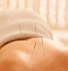 Initial Acupuncture Consultation