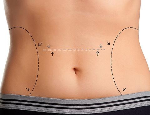 abdominoplastia-cirurgia-plastica-porto-alegre