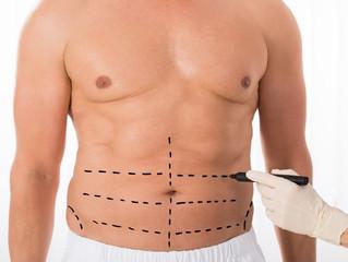 Lipoaspiração cai no gosto dos homens e pode ajudar a definir o abdômen