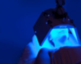 blue-led-procedure-big.jpg