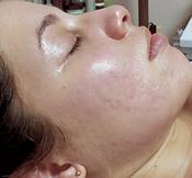 Rez after acne.png