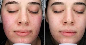 melbourne skin clinic